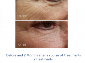 Micro Needling to reduce wrinkles